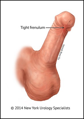 Urologist frenuloplasty procedure Ontario